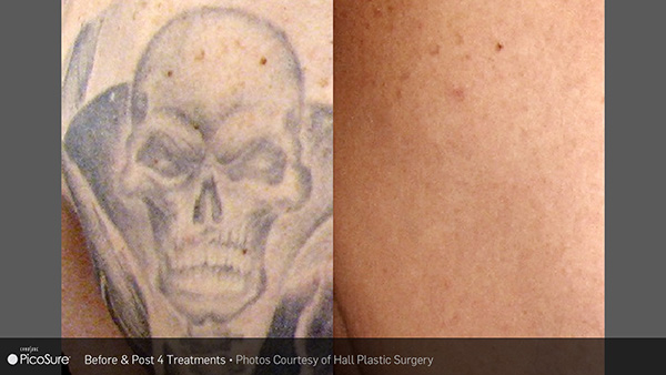 tattoo removal savannah, picosure tattoo removal, laser tattoo removal