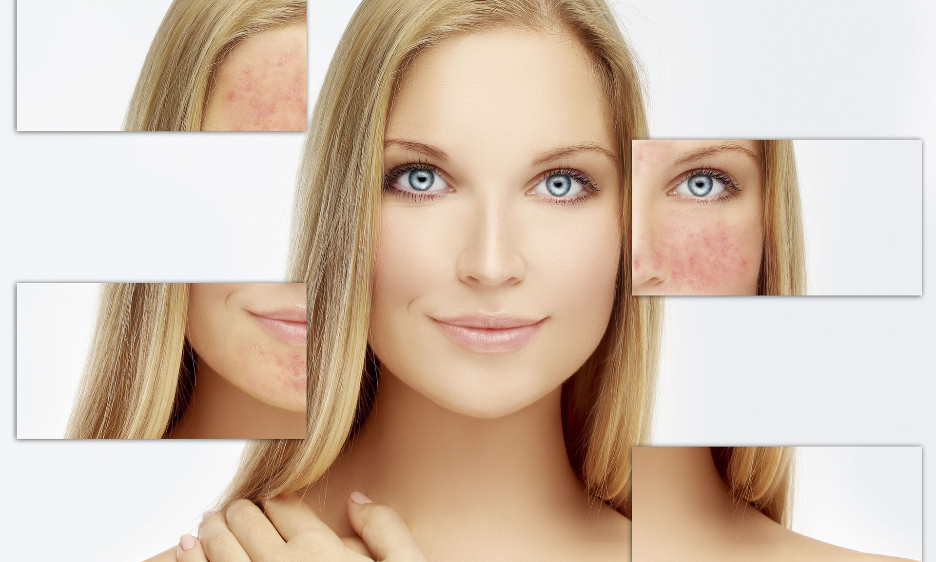 What is Rosacea and What Can You Do About It?