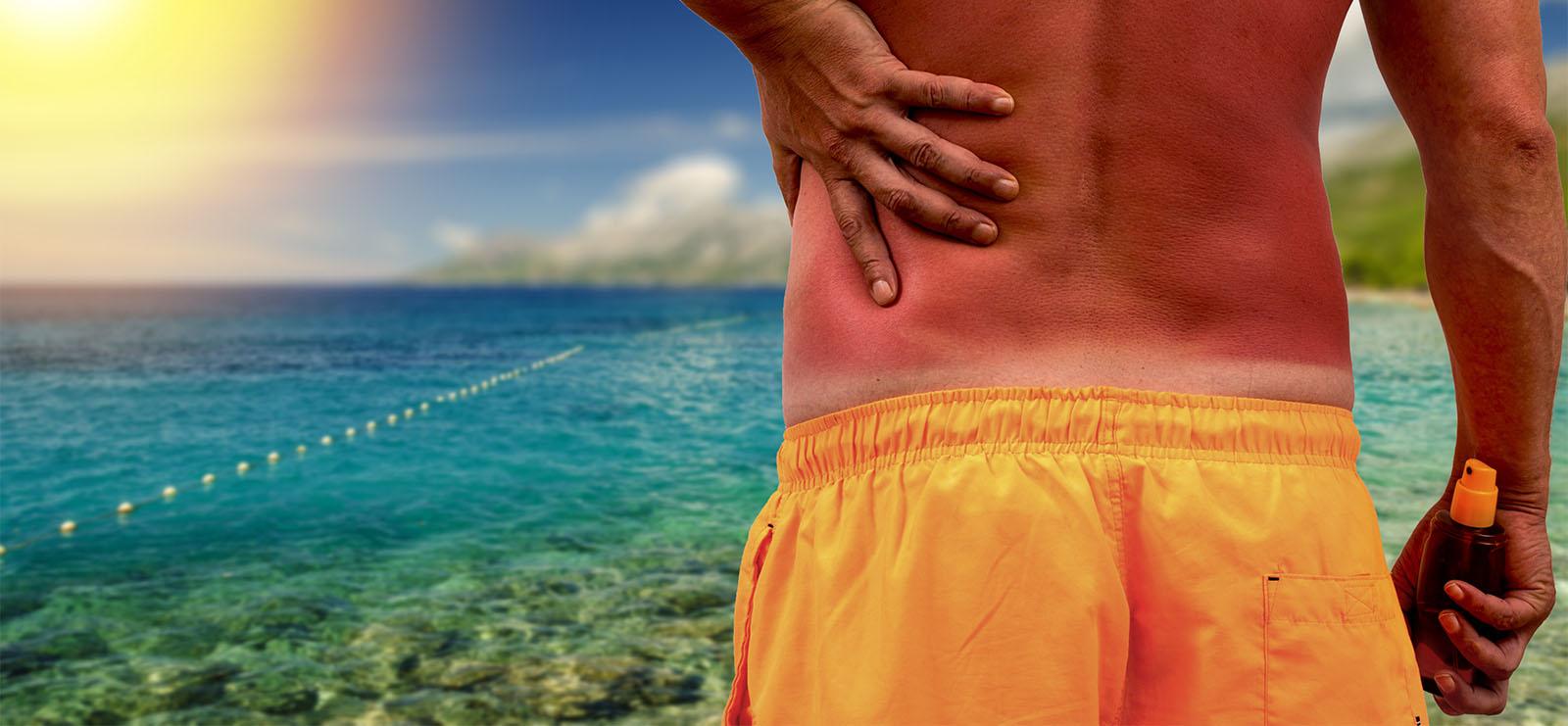 Help for Sunburned Skin